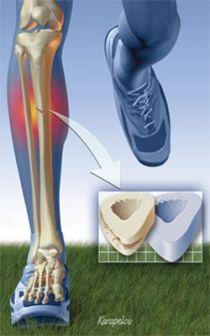 13-2 การสร้างความแข็งแรงของกระดูกในนักวิ่ง-5