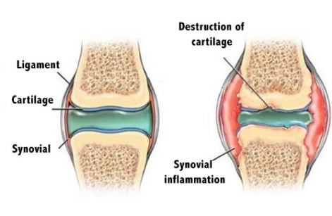 13-5 การสร้างความแข็งแรงของกระดูกอ่อนในนักวิ่ง-2