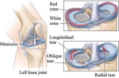 13-5 การสร้างความแข็งแรงของกระดูกอ่อนในนักวิ่ง-4